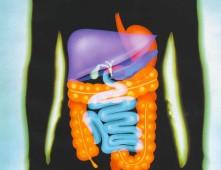 Пухлина органів травлення